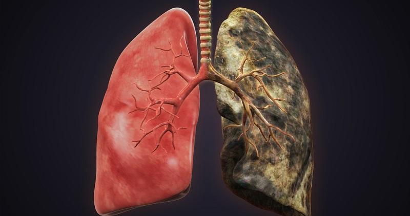 Der Körper kann sich regenerieren, wenn ein Rauchstopp durchgeführt wird. Bereits nach einem Jahr ohne Zigarette ist das Risiko für die Entstehung von einer Herzkrankheit schon um die Hälfte gesunken.