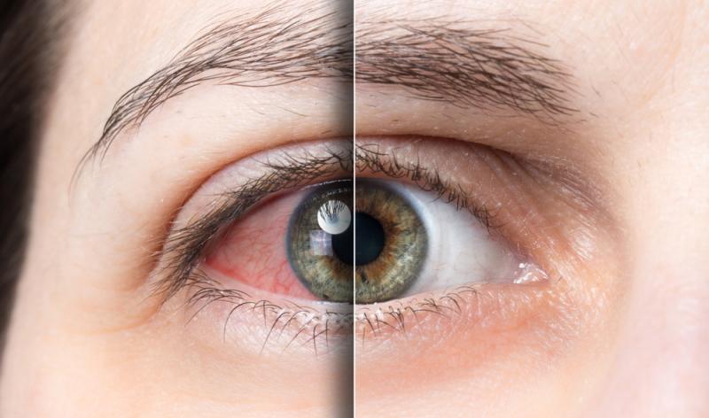 Auch in der besten Augenklinik in Hessen können Komplikationen auftreten, die man nicht auf die leichte Schulter nehmen sollte.
