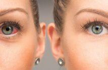 Die beste Augenklinik Deutschlands